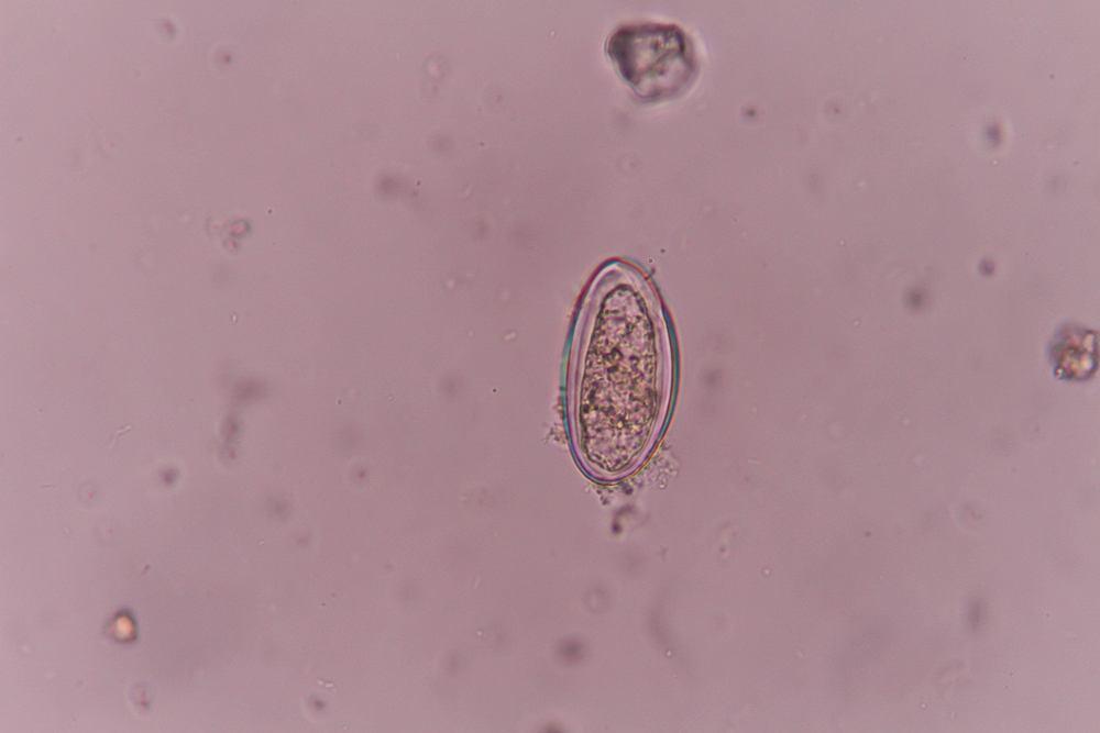 Enterobius vermicularis objawy, Psihosomatika lyamblioza