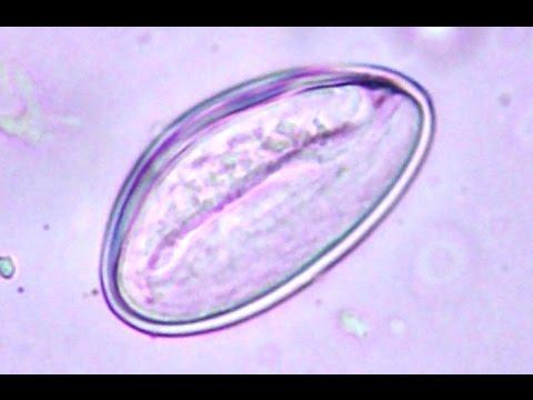 enterobius vermicularis oua cum să scapi de toxine și paraziți