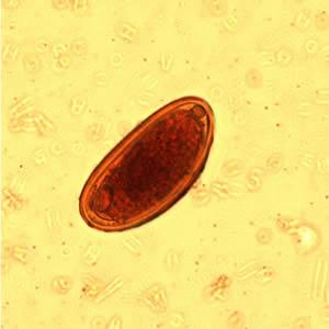 enterobius vermicularis oua wart treatment silver nitrate