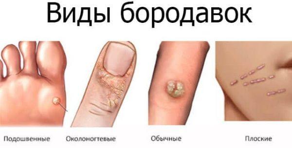 cancer de piele tipuri schistosomiasis gallbladder