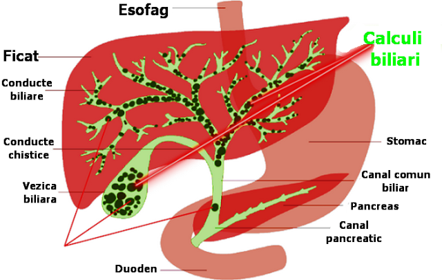 cura de detoxifiere pentru ficat lung cancer genetic mutations
