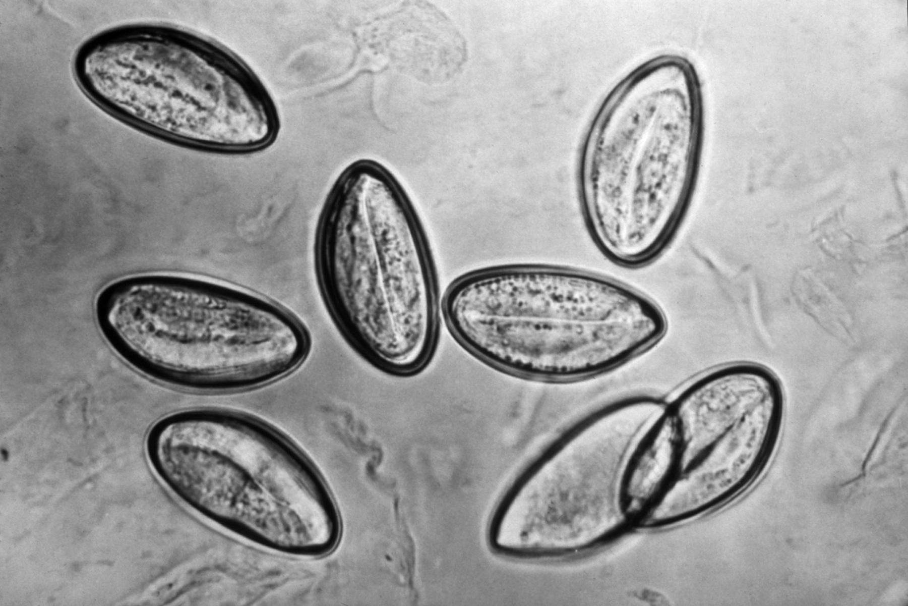 Enterobius vermicularis worms - Enterobius vermicularis worms