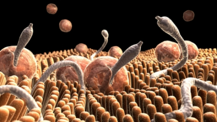 parazitoze intestinale simptome