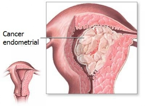 Cancerul endometrial: care sunt simptomele si tratamentul - Farmacia Ta - Farmacia Ta