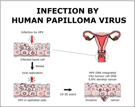 hpv cancer causing virus condiloame kvd