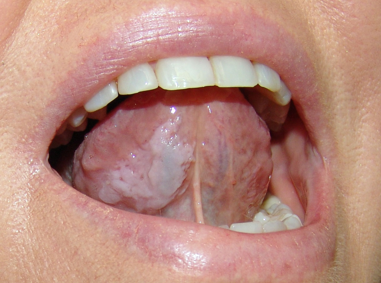 lingua bianca papilloma papanicolaou anormal que significa