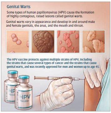 hpv genital verruca papilloma virus alla vescica