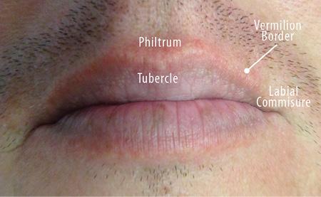 hpv lip symptoms