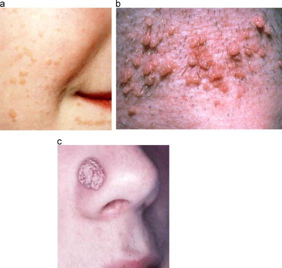 Hpv skin symptoms