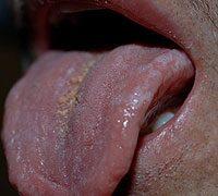 Hpv a szajban, Hpv virus tunetei szajban, Tabloul clinic al bolii