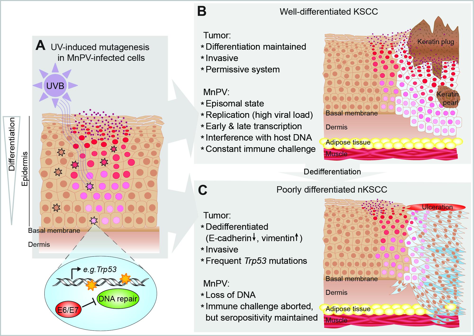 hpv virus and skin cancer prevenirea medicamentelor pentru vierme