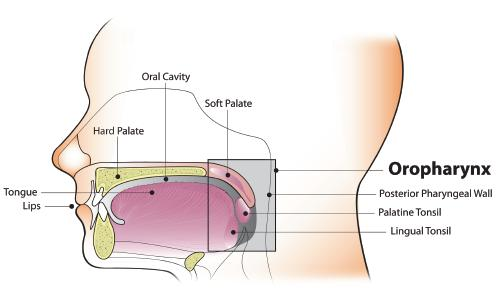 treatment hpv throat cancer sarcoma cancer forehead