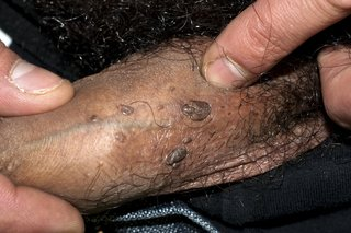 Hpv wart burns, Virusul HPV, asimptomatic Hpv genital warts cancer