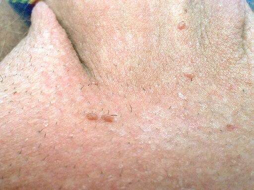 Neck papilloma removal, HPV o necunoscuta?, Neck papilloma removal