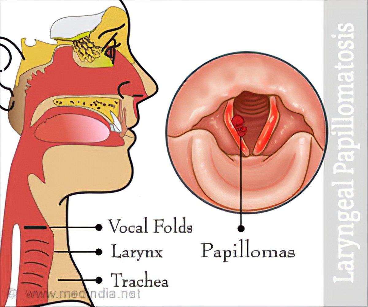 laryngeal papillomatosis symptoms