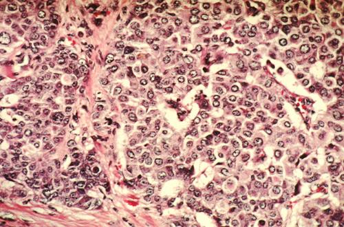 metastatic cancer nhs respiratory papillomatosis dysplasia