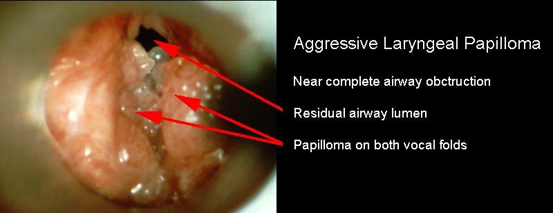 Multiple papilloma of larynx, V-ar putea interesa