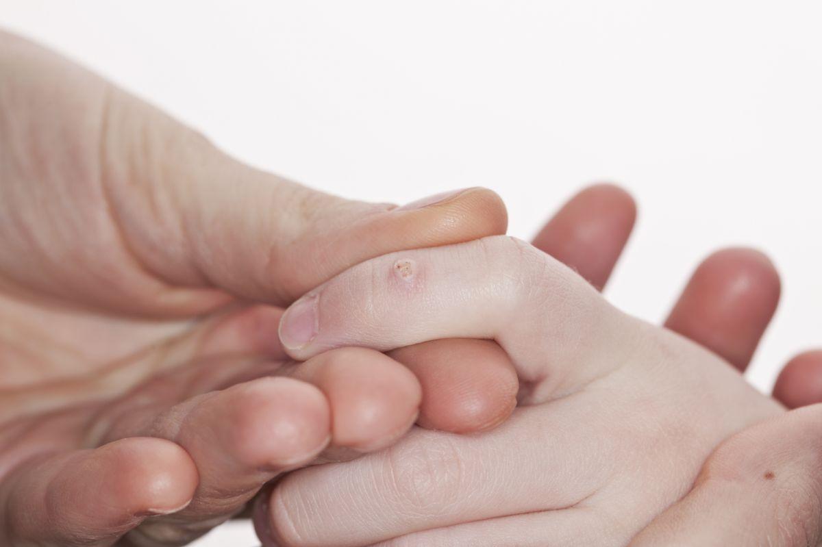 Negii la copii: cauze și tratament - Totul Despre Mame