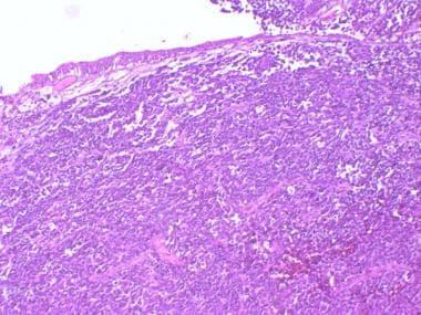 neuroendocrine cancer and bladder human papilloma virus in swahili