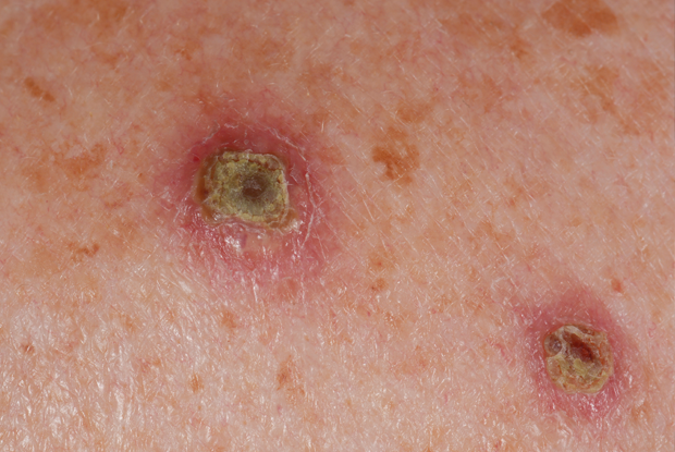 neuroendocrine cancer rash