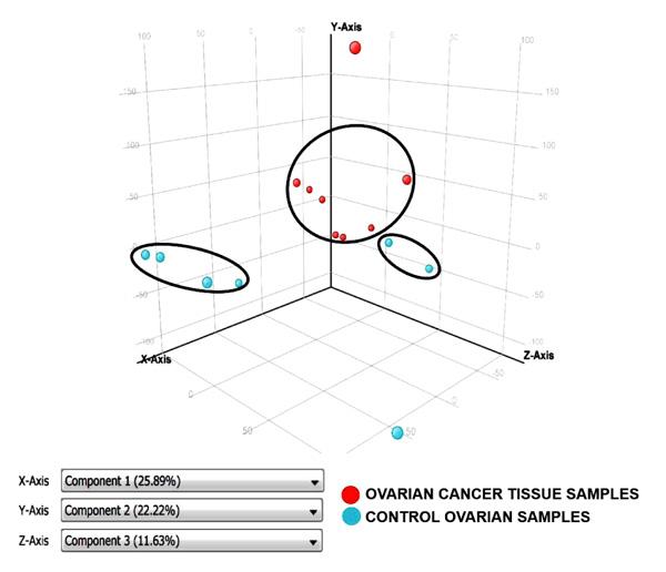 Protocol Cancerul Ovarian