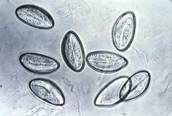 oxiurus urios verme preparate moderne pentru viermi