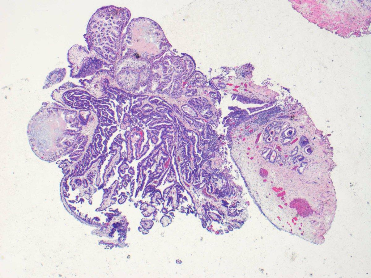 Papillary lesion prostate,