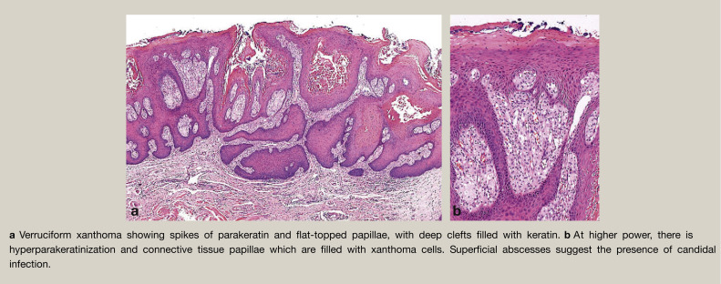 papillary verrucous lesion cancer and abdominal wall