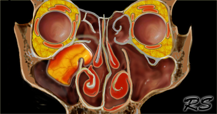 Nasal sinus inverted papilloma, Mucho más que documentos., Nasal sinus inverted papilloma