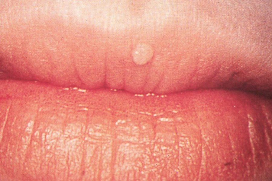 papilloma virus alle labbra
