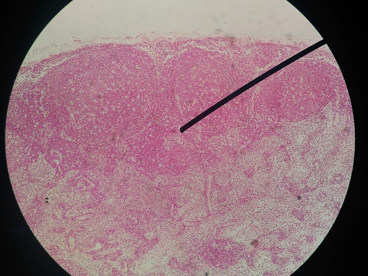 Papilloma virus uomini