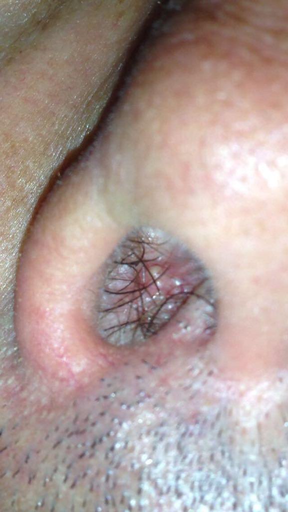 Papilloma virus gola immagini. IATE_DE_RO