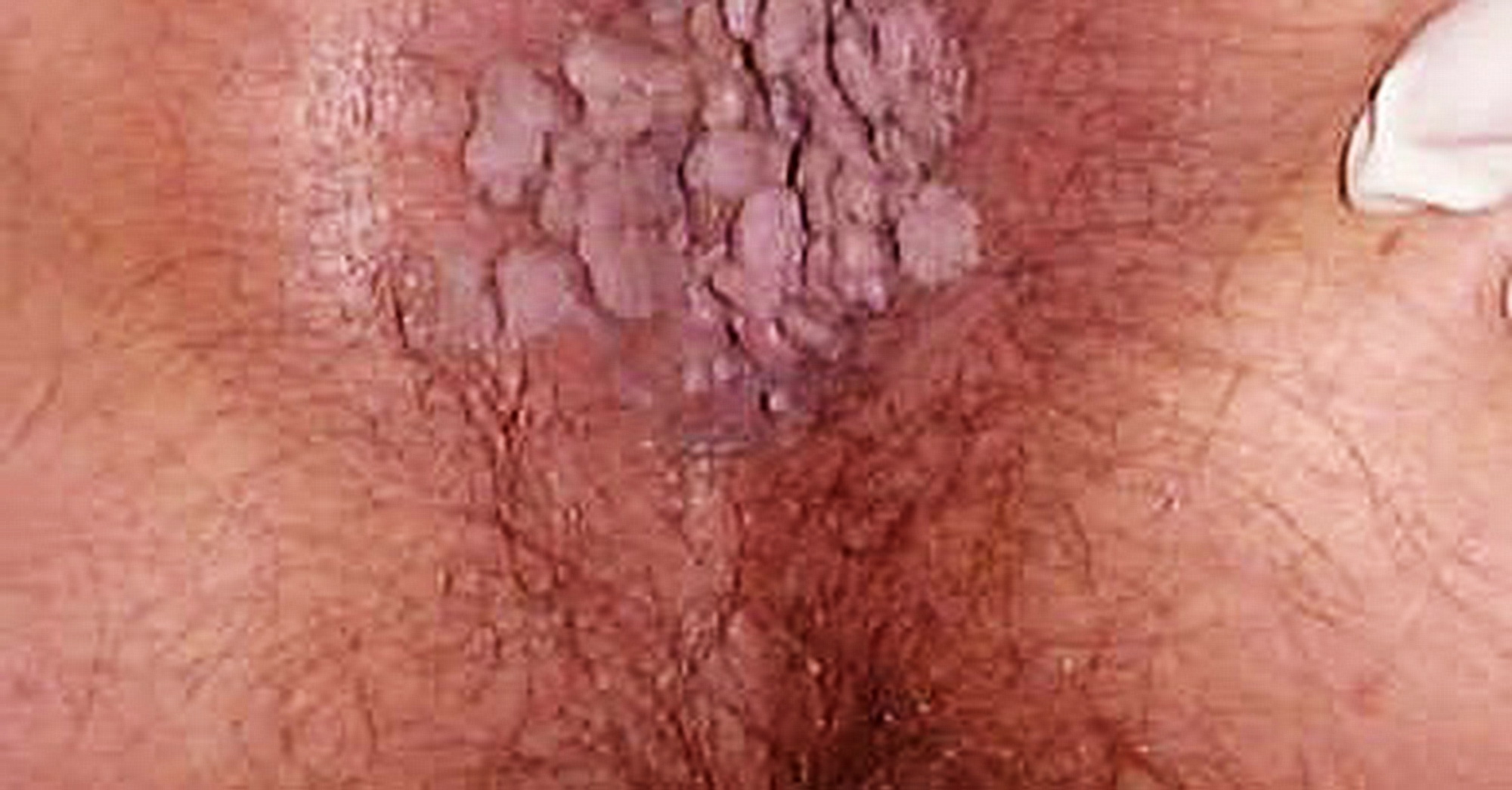Hpv ano sintomi