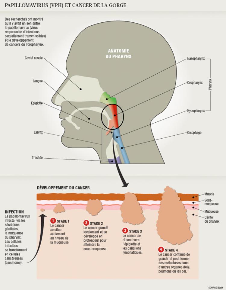 papillomavirus bouche gorge