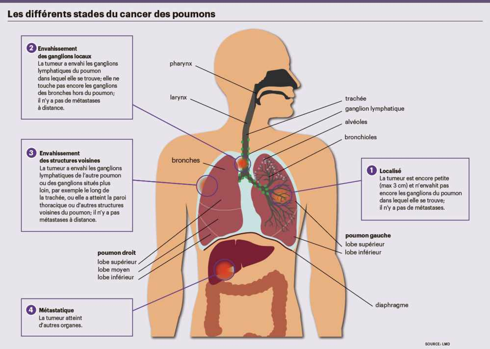 cancer de prostata libros