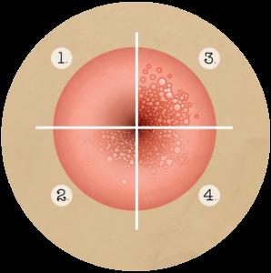 Papillomavirus humains genitaux, Papillomavirus humain recidive