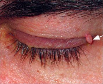 papilom condilom leucoplazie