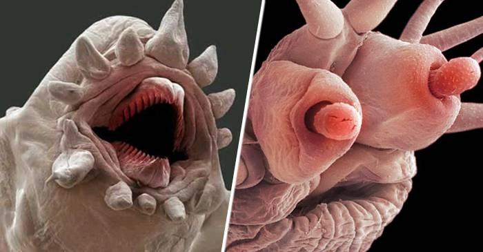 paraziți de viermi umani