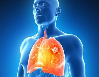 paraziți în tratamentul plămânilor umani din pastile papiloame