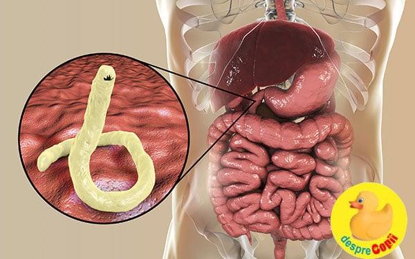criodistrucție la îndepărtarea verucilor genitale hpv and rectal cancer