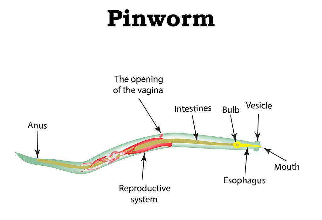 pinworms copii un an de tratament treatment for helminth infestations