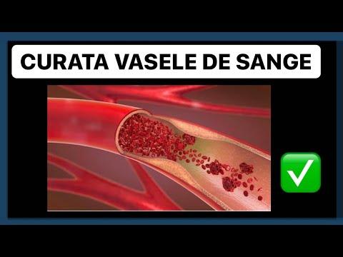 wart skin lump hepatic cancer pain