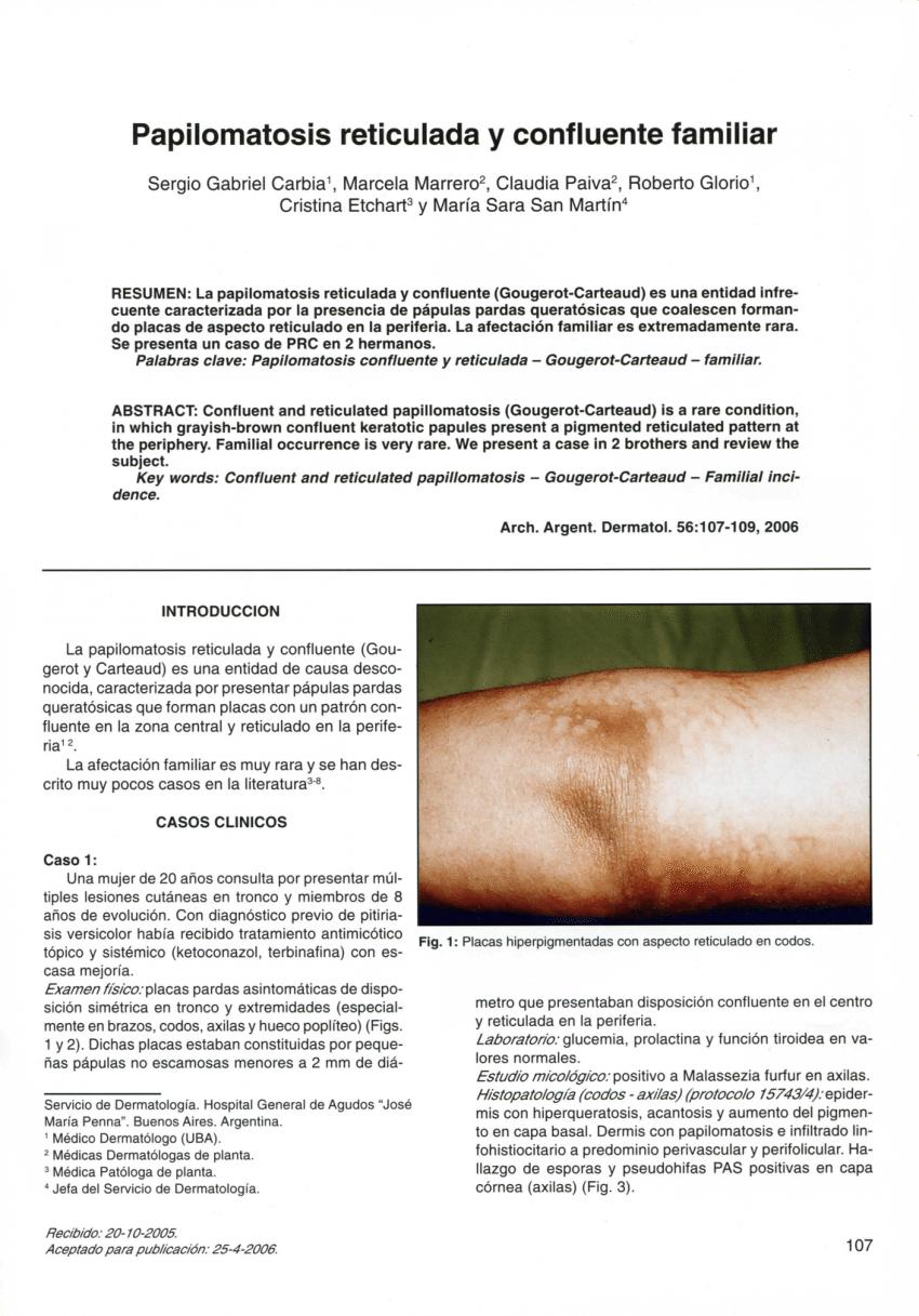 detoxifiere ionica
