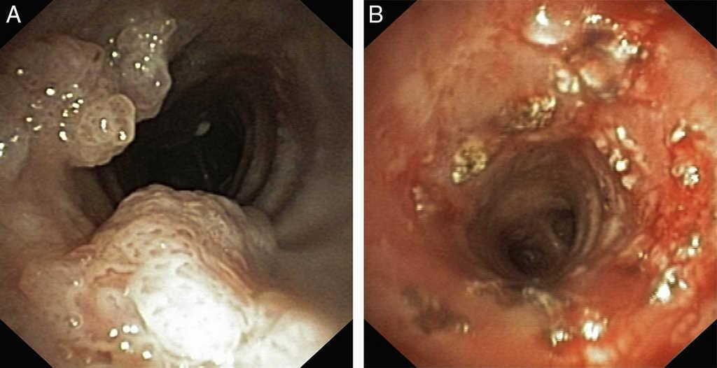 respiratory papillomatosis dysplasia