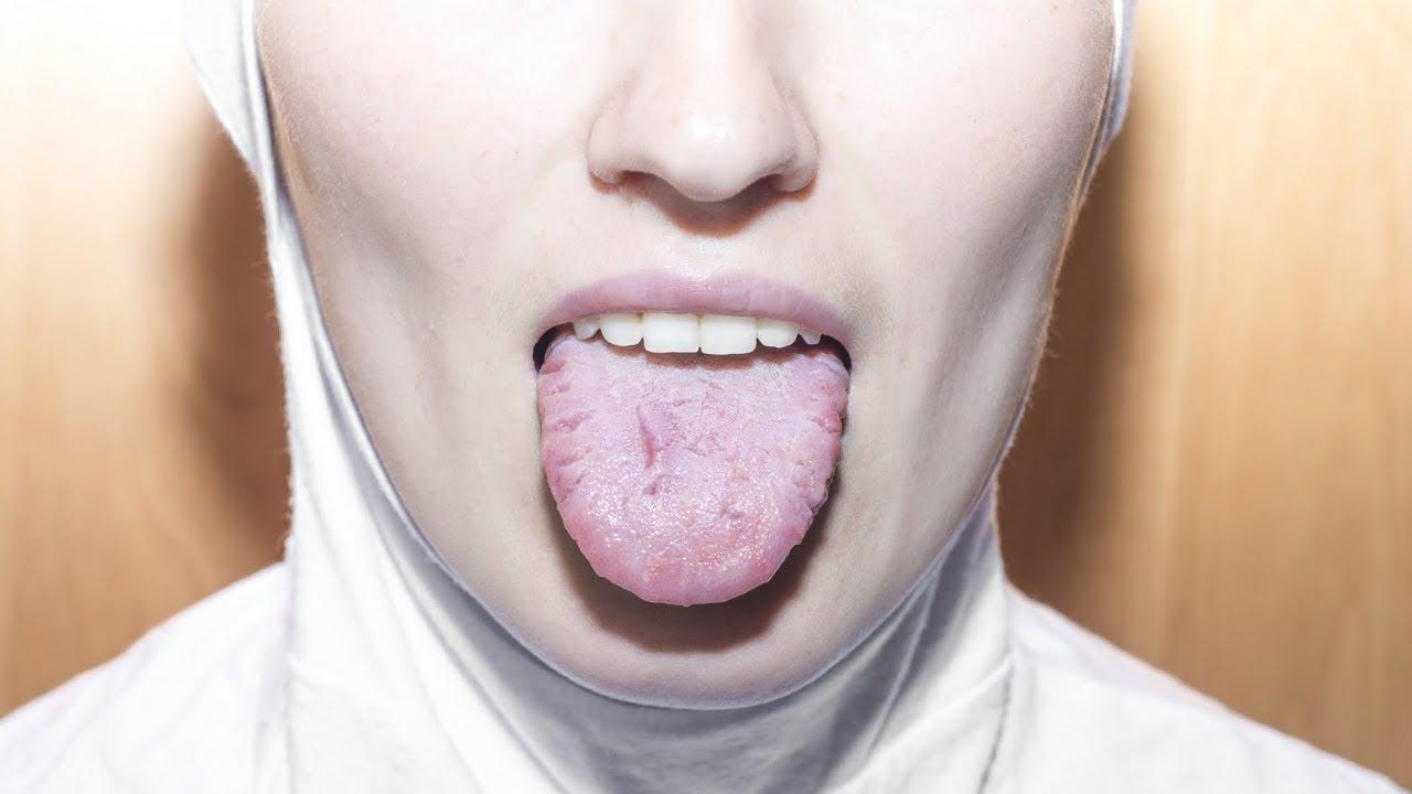simptome cancer in gura cele mai bune remedii pentru negi