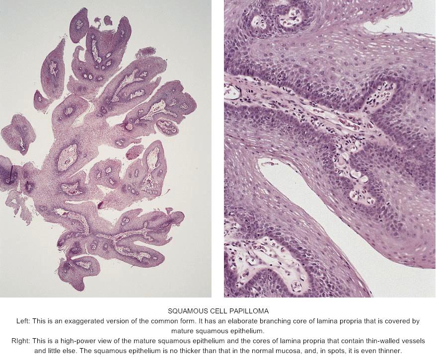Skin Cancer, Squamous papilloma tongue pathology outlines