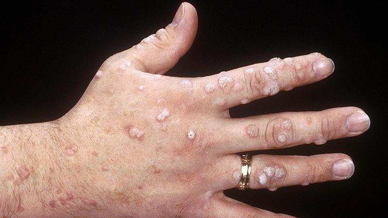 squamous papilloma virus wart