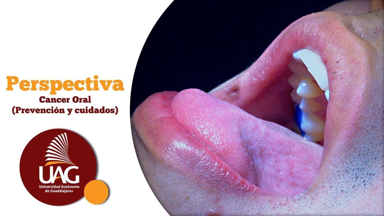 Program de detoxifiere in Covasna