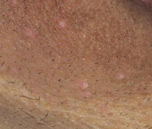 Condiloamele acuminate anale