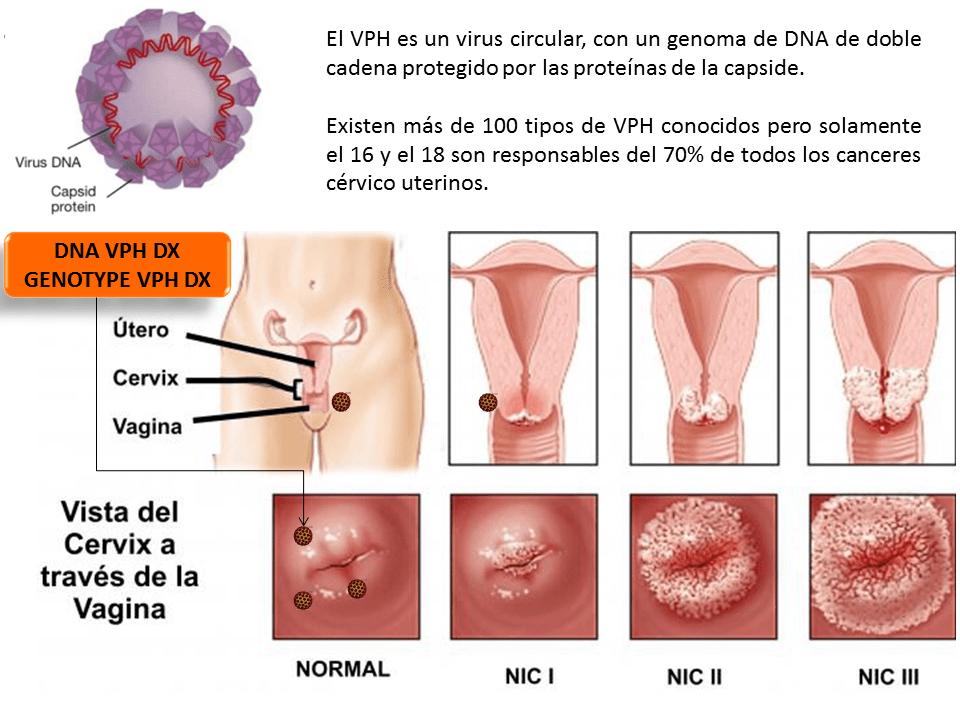 Virus papiloma humano tipo 16